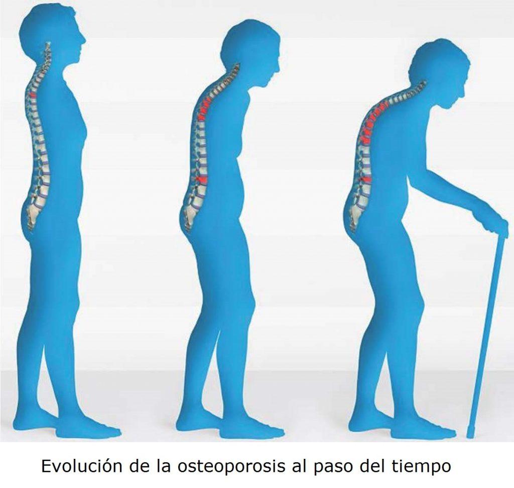 evolucion-osteoporosis