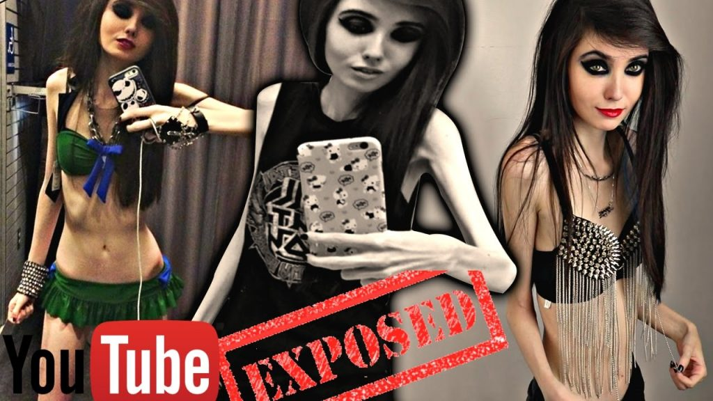 anorexia-2